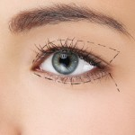 Los Angeles Eyelid Surgery
